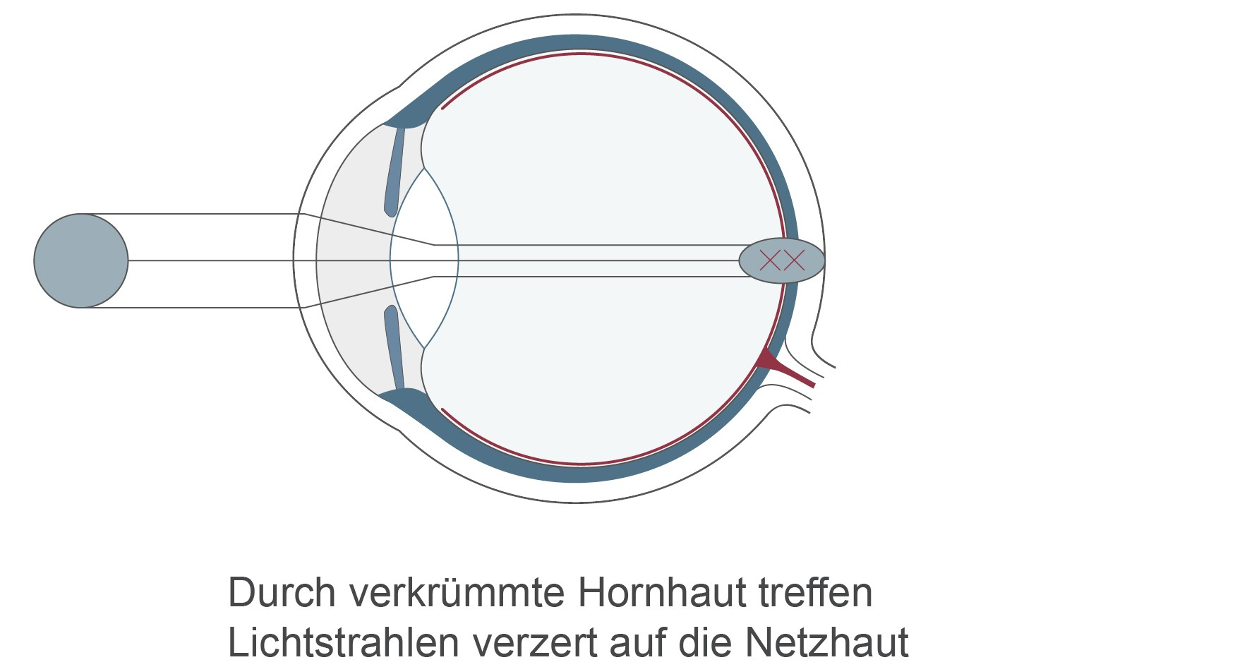 Hornhautverkrümmung: Unterschiedlich starke Wölbungen