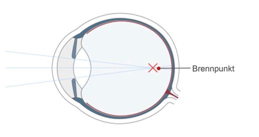 Das kurzsichtige Auge