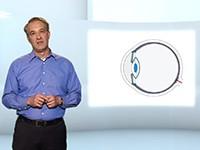 Video: Dr. Lerche: Multifokallinsen