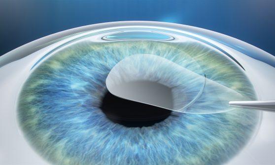 ReLEx Auge Darstellung