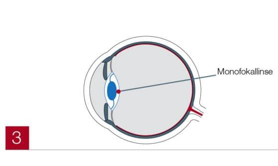 Monofokallinse im Auge (Grauer Star)