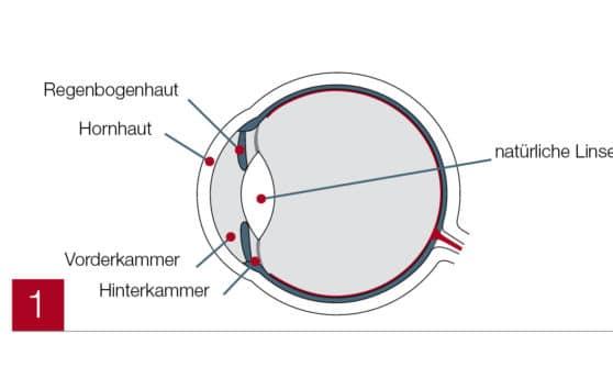 Auge beschriftet (ICL)