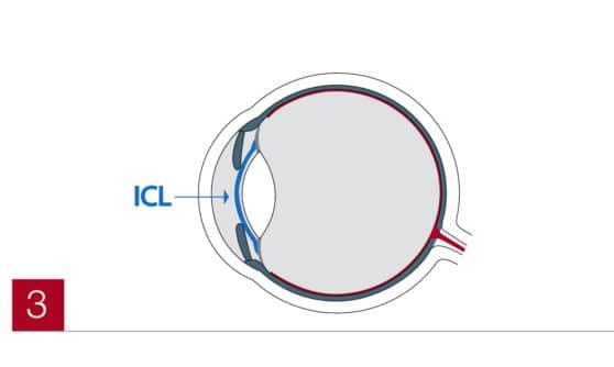 ICL im Auge