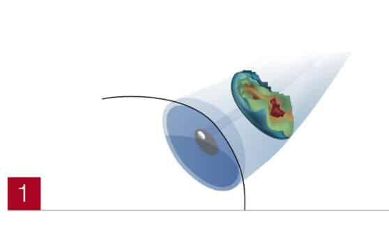LASIK Abbildung