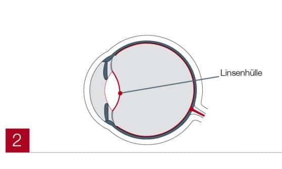 Linsenhülle im Auge (Trifokallinse)