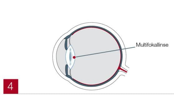 Multifokallinse im Auge