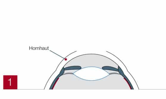 Hornhaut im Auge (PRK)