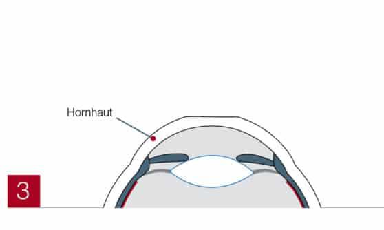 Hornhaut beschriftet (PRK)