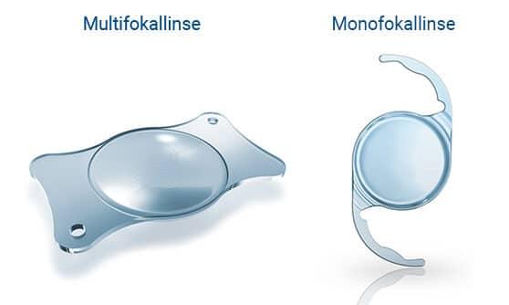 Multifokallinse & Monofokallinse
